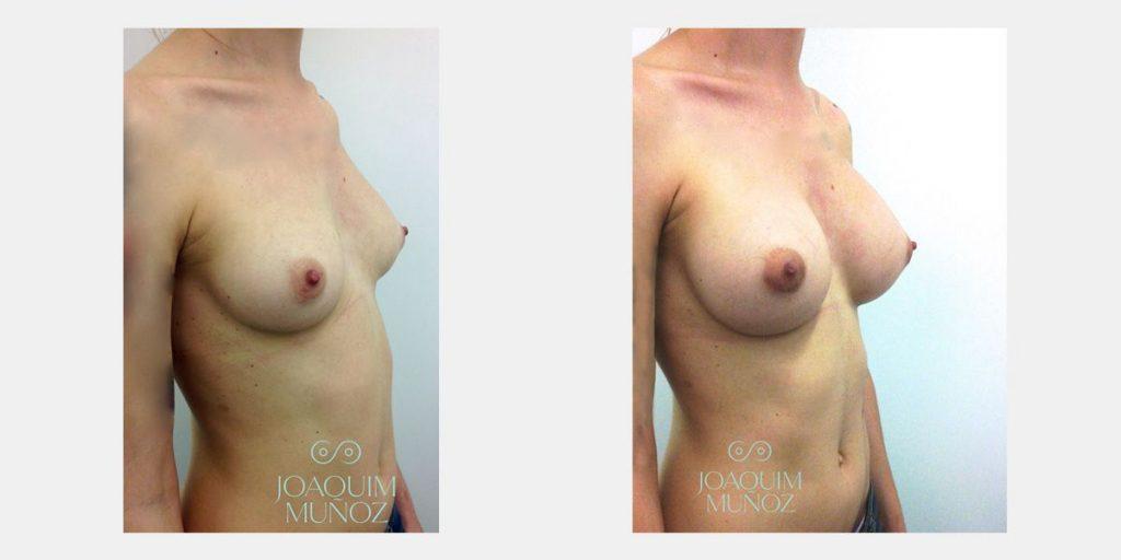 Dr diaco aumento de senos