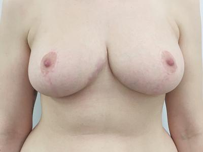 cirugía reducción de pechos