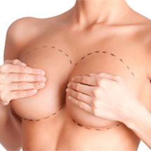 reduccion de senos
