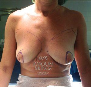 Ventajas técnicas clásicas de reconstrucción mamaria