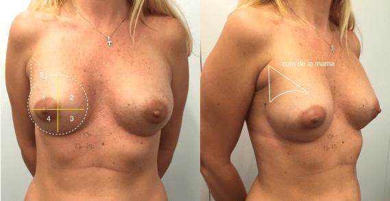 cirugía cáncer de mama
