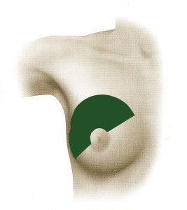 dorsal ancho endoscópico