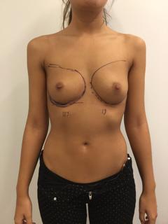 aumento mamario antes