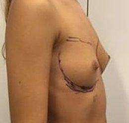 aumento senos antes