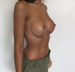 aumento senos despues