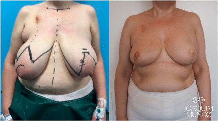 Reconstruccion mamaria, antes y después