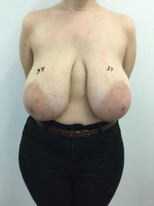 reduccion senos antes