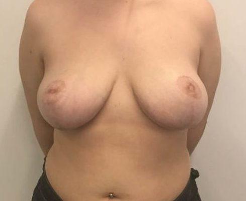 reduccion senos despues