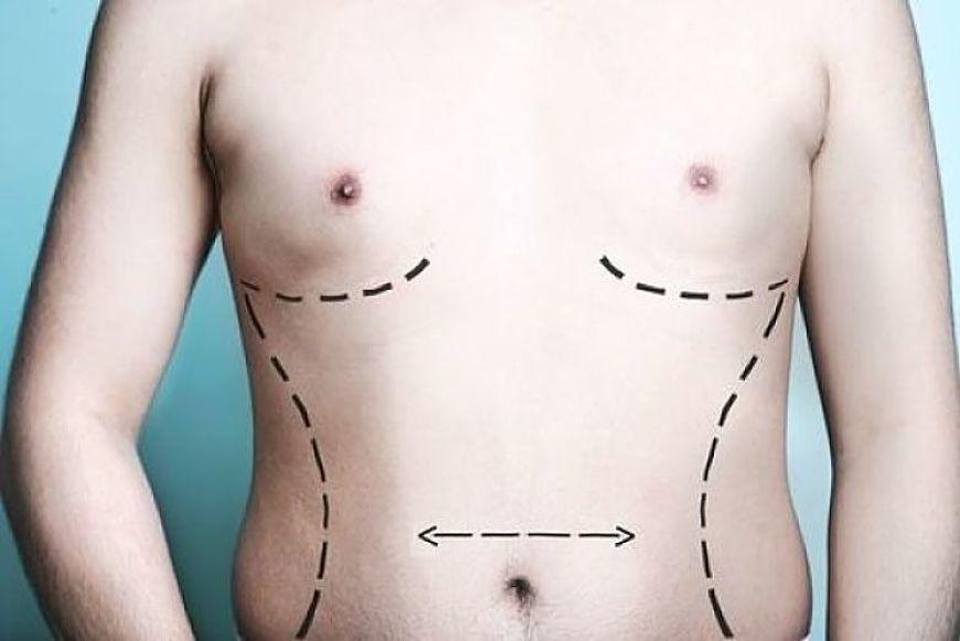 cirugia estetica masculina