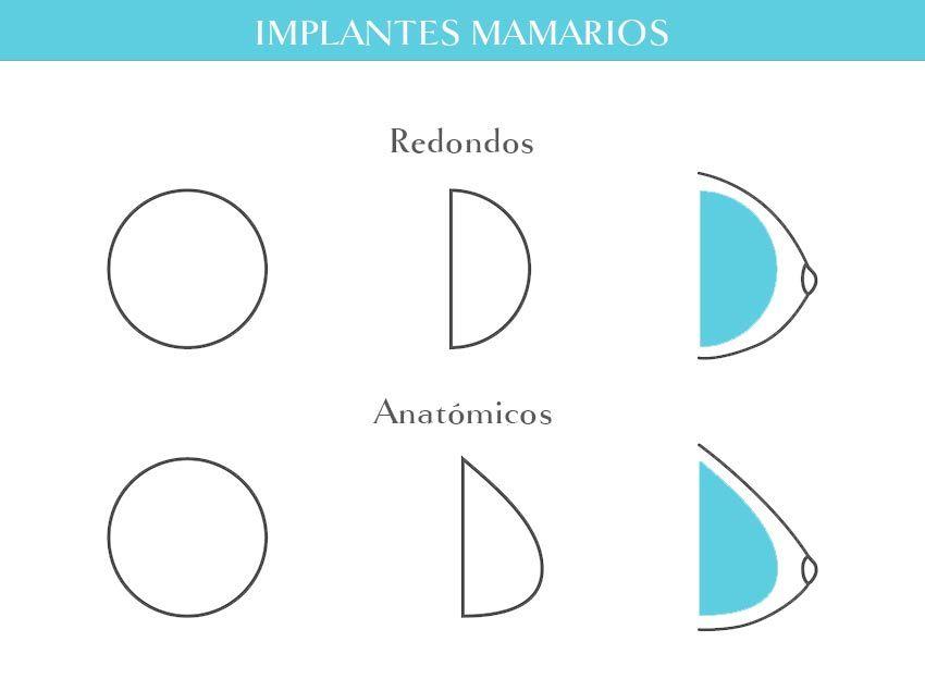 Característica implante redondo y anatómico