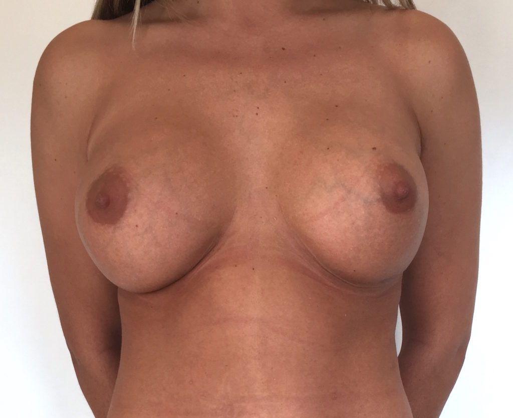 Implantes redondos antes y después