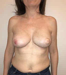reconstrucción mamaria dorsal ancho antes y después