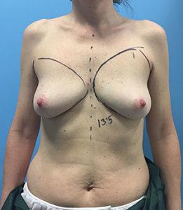 reconstrucción dorsal ancho antes y después