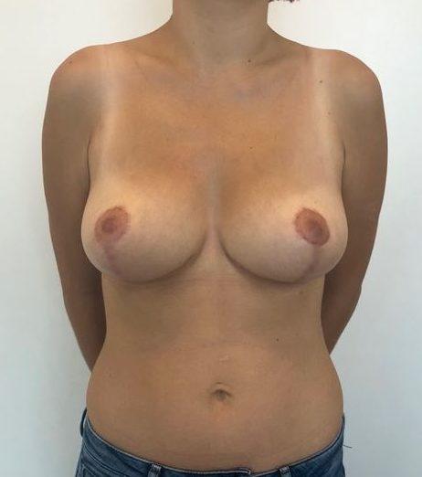 asimetria mamaria