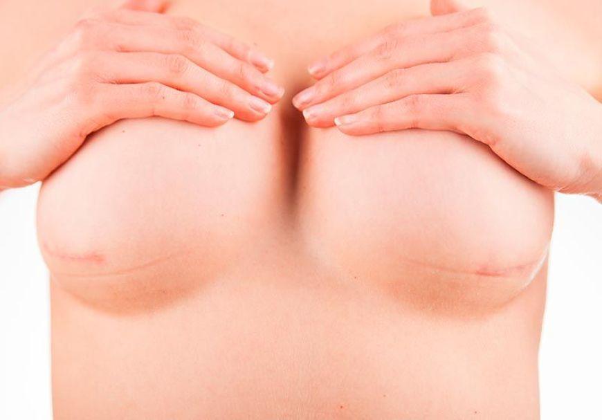 postoperatorio reconstruccion mamaria