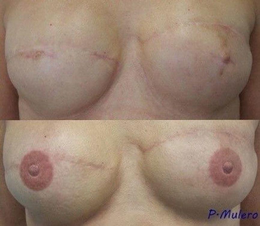 dermopigmentacion y reconstruccion mamaria