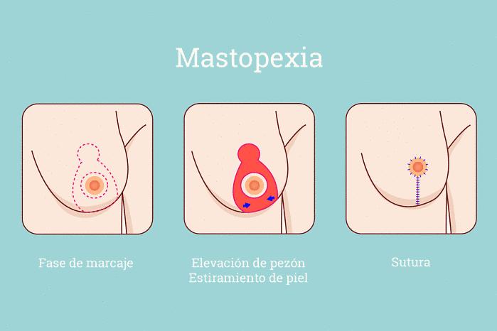 Incisiones de la mastopexia