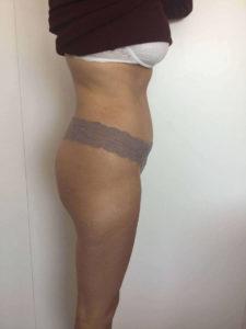 abdominoplastia despues