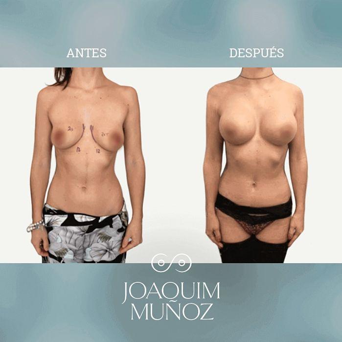 aumento de mamas antes y despues