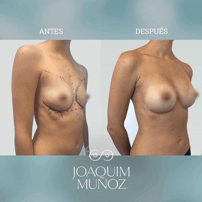 aumento de senos antes y despues