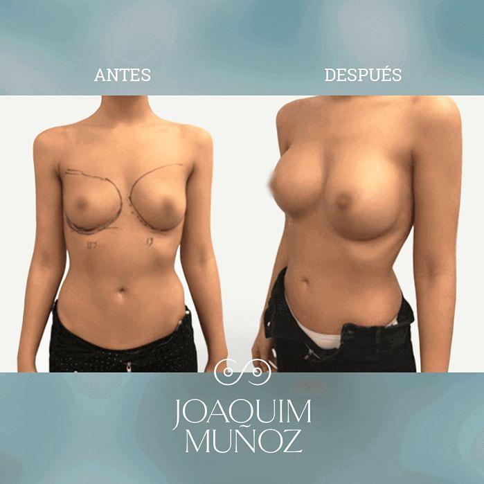 aumento mamas antes y despues