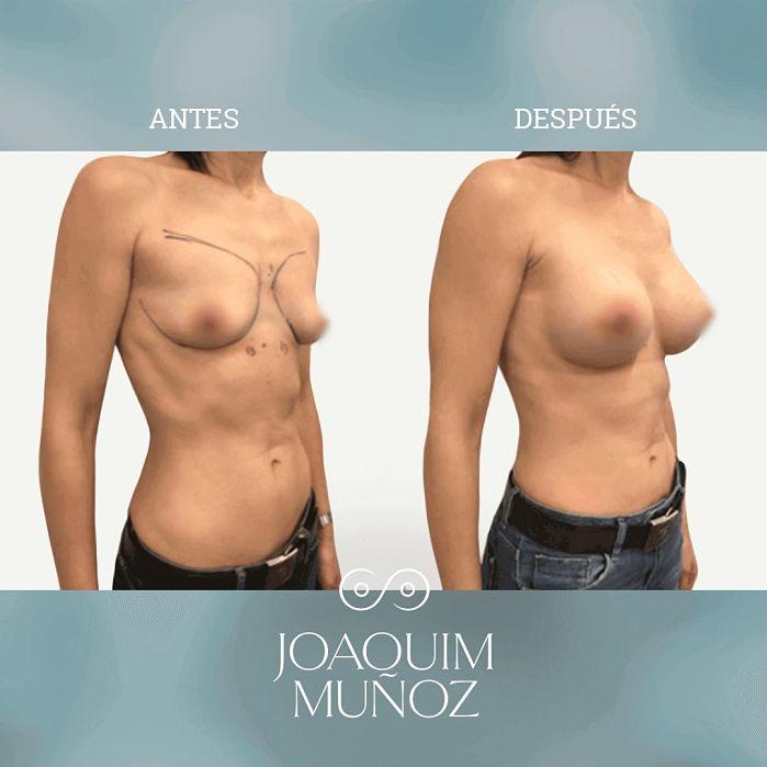 aumento senos antes y despues
