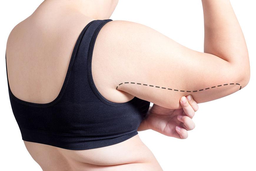 procedimiento liposuccion brazos