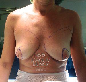 antes reconstruccion mamaria