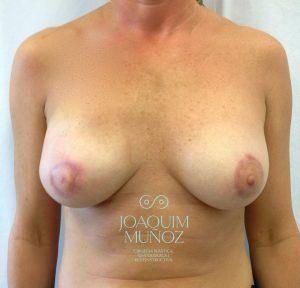 despues reconstruccion mamaria