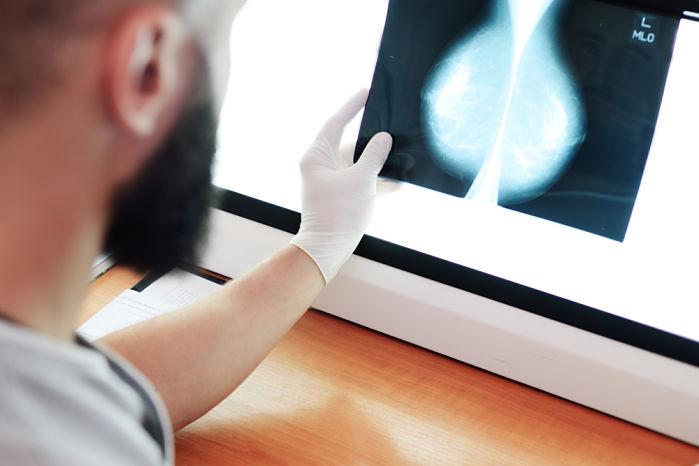 deteccion precoz del cancer de mama