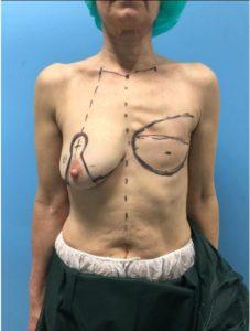 reconstruccion mamaria antes