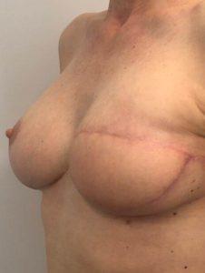reconstruccion mamaria despues