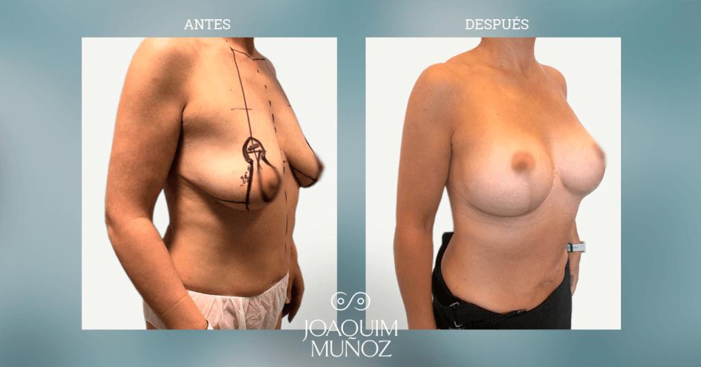 imagenes mastopexia con implante redondo en dual plane