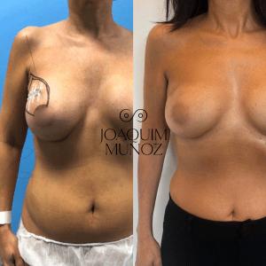 oncoplastica antes y despues fotos 1