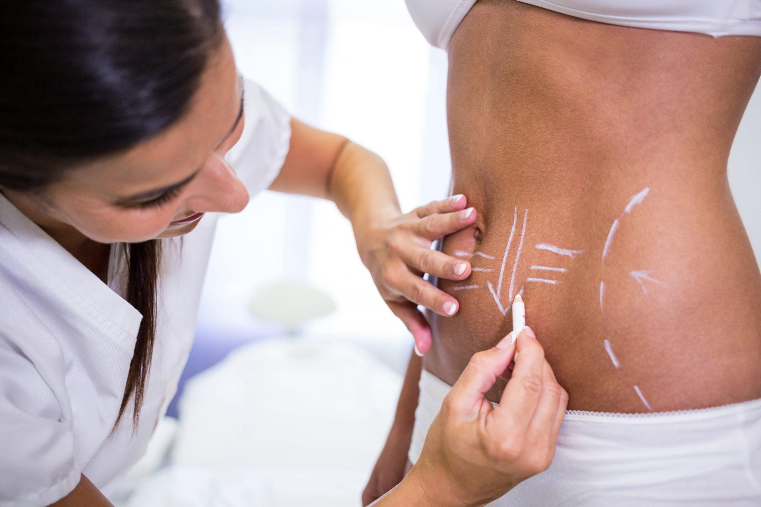 irregularidades en la piel tras una liposuccion-min