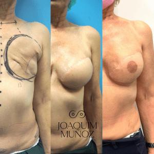 antes y despues cirugia dorsal ancho